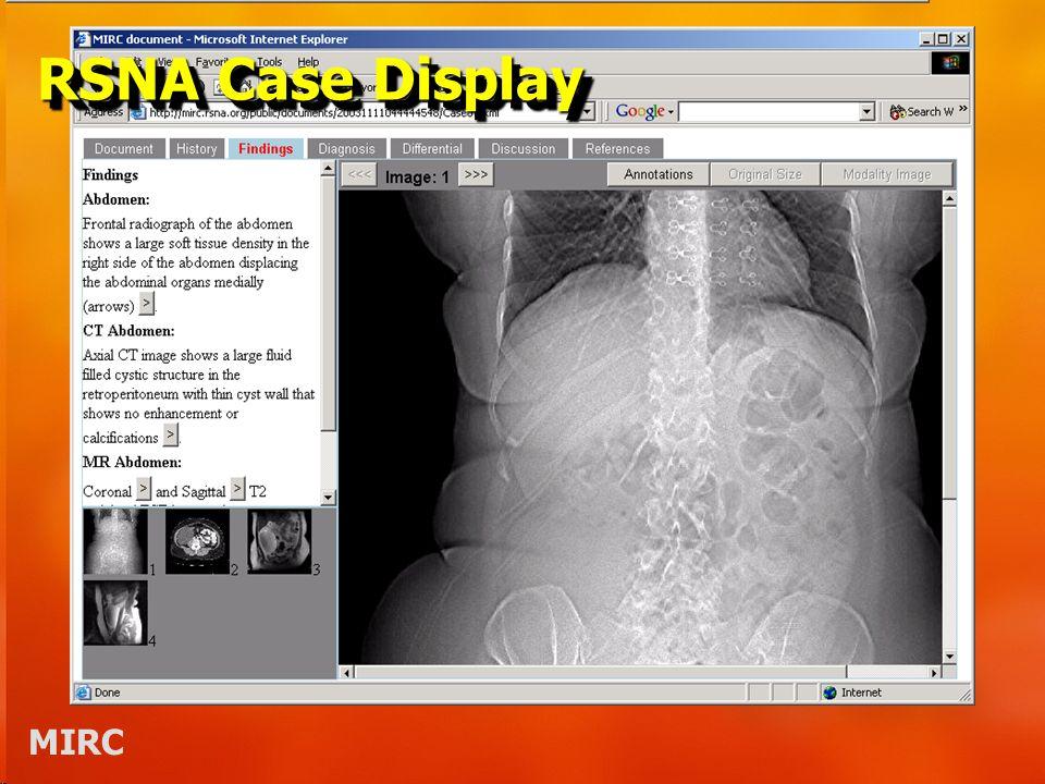 MIRC RSNA Case Display