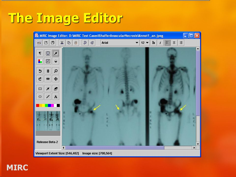 MIRC The Image Editor