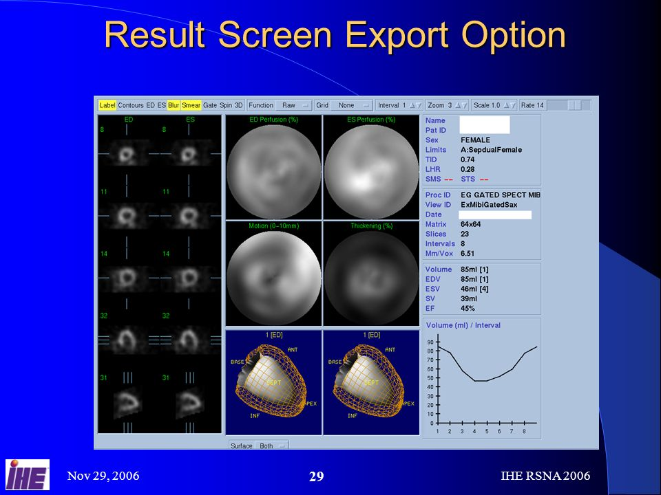 Nov 29, 2006IHE RSNA Result Screen Export Option