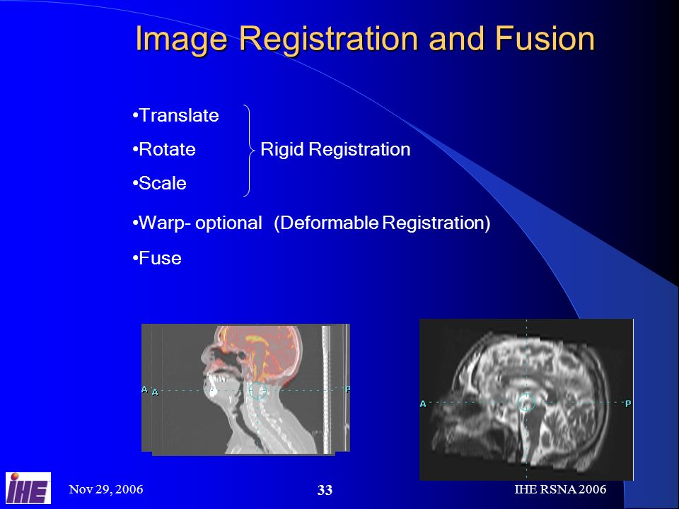 Nov 29, 2006IHE RSNA Image Registration and Fusion Translate Rotate Rigid Registration Scale Warp- optional (Deformable Registration) Fuse
