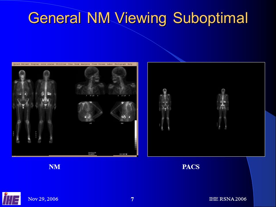 Nov 29, 2006IHE RSNA General NM Viewing Suboptimal NMPACS