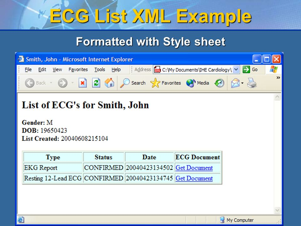 12 ECG List XML Example Formatted with Style sheet