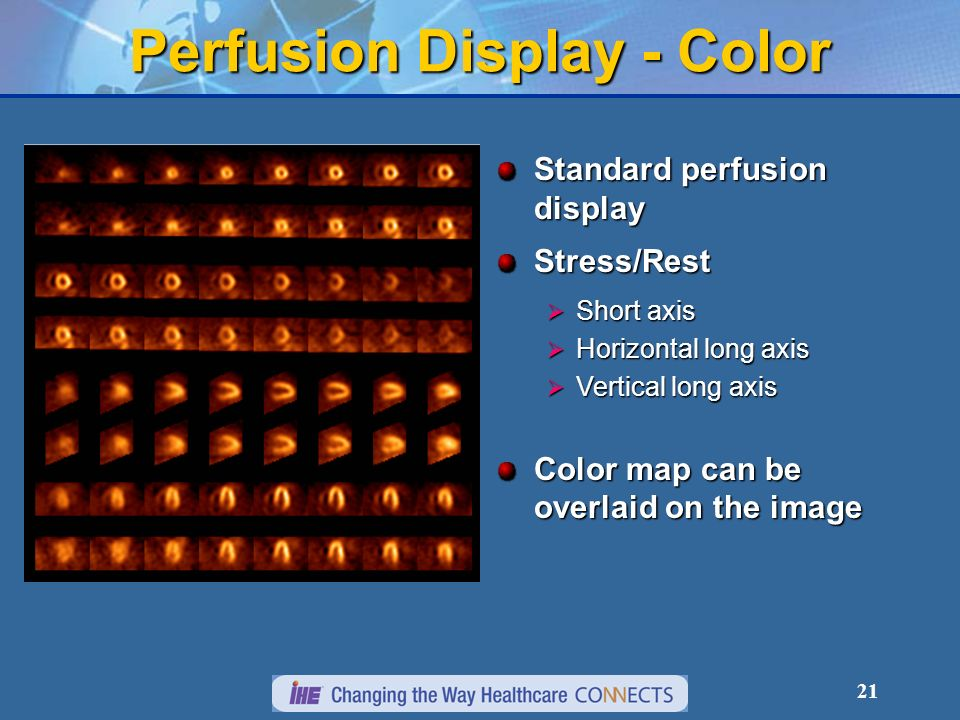 21 Perfusion Display - Color Standard perfusion display Stress/Rest Short axis Short axis Horizontal long axis Horizontal long axis Vertical long axis