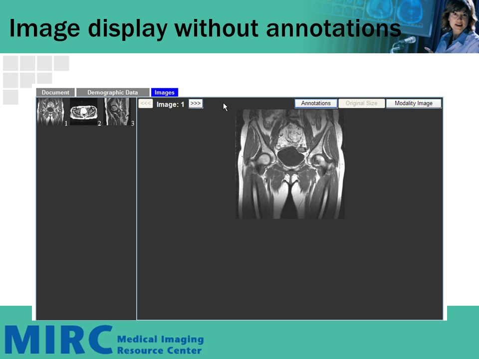 Image display without annotations