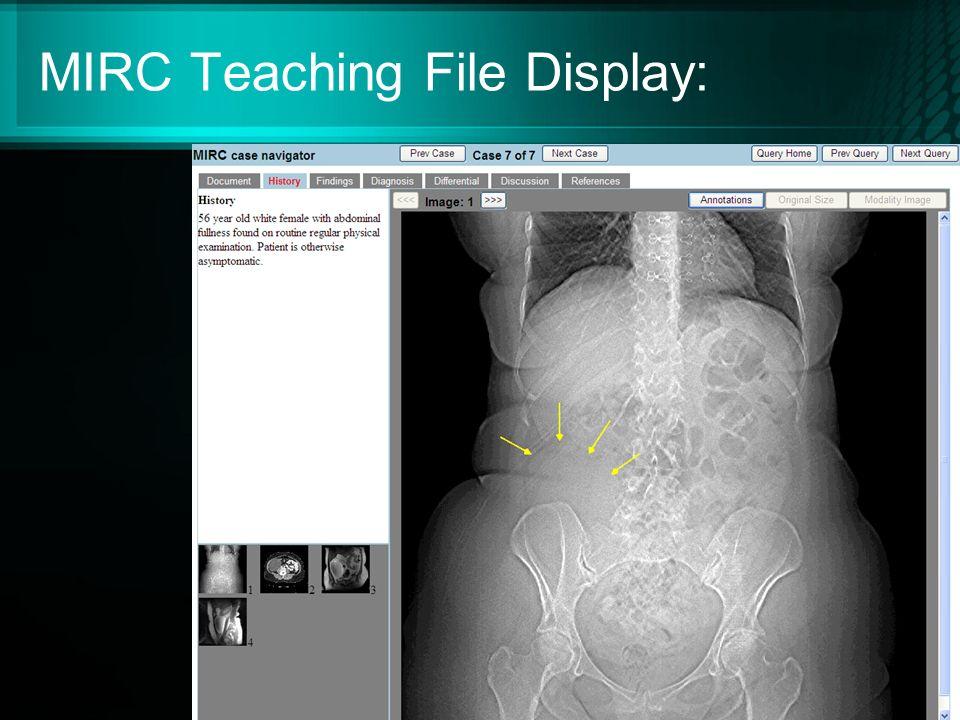 MIRC Teaching File Display: