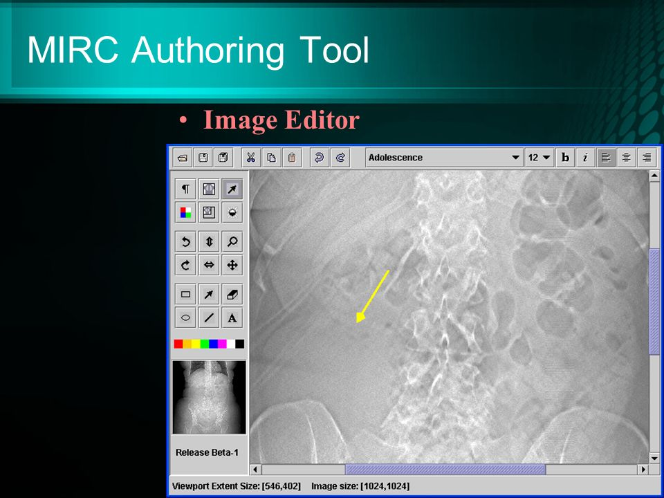 MIRC Authoring Tool Image Editor
