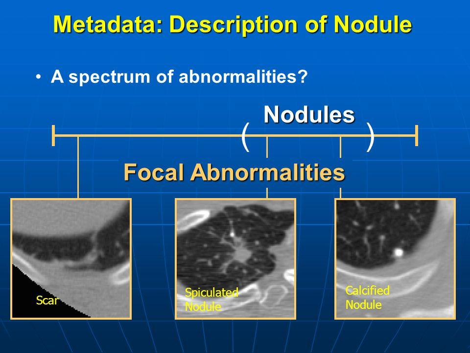 Metadata: Description of Nodule Focal Abnormalities ()Nodules A spectrum of abnormalities? Scar Spiculated Nodule Calcified Nodule