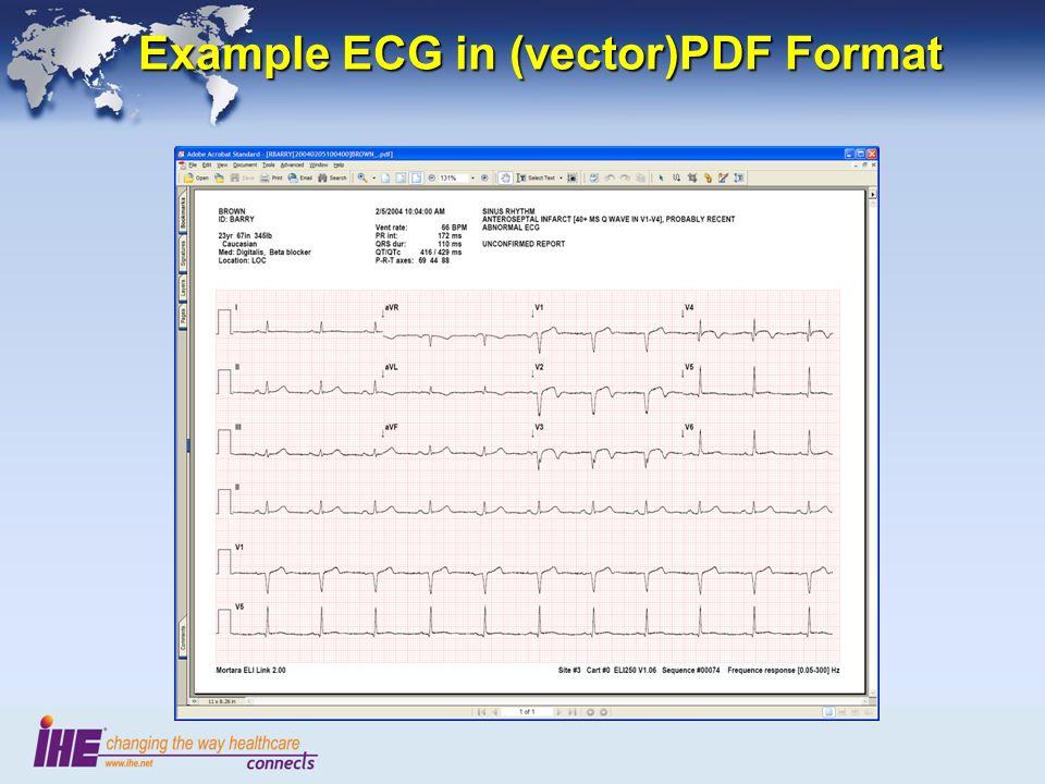 Example ECG in (vector)PDF Format