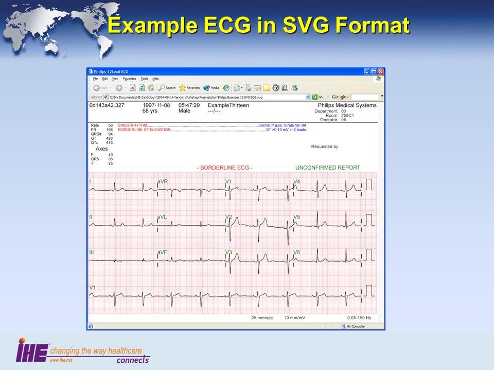 Example ECG in SVG Format Example ECG in SVG Format