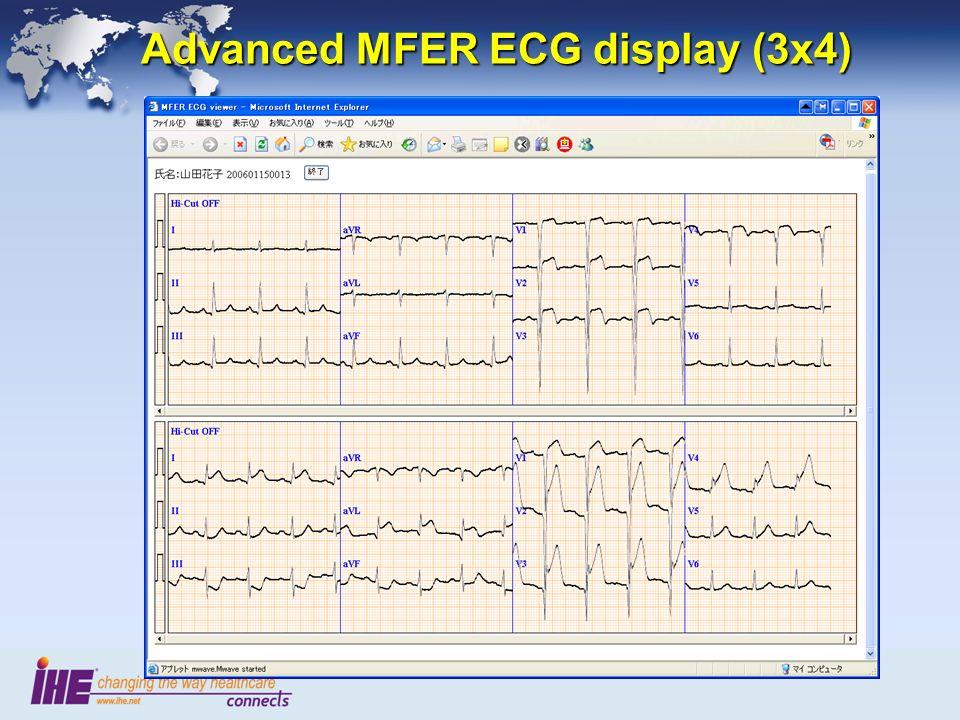 Advanced MFER ECG display (3x4)