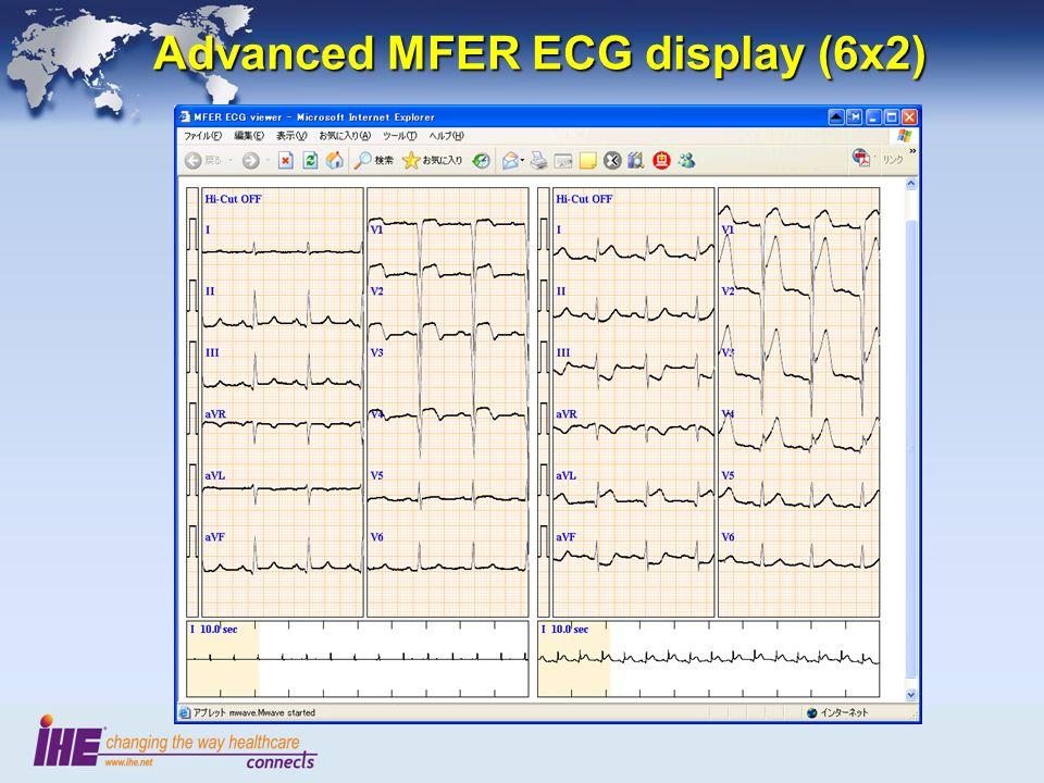 Advanced MFER ECG display (6x2)