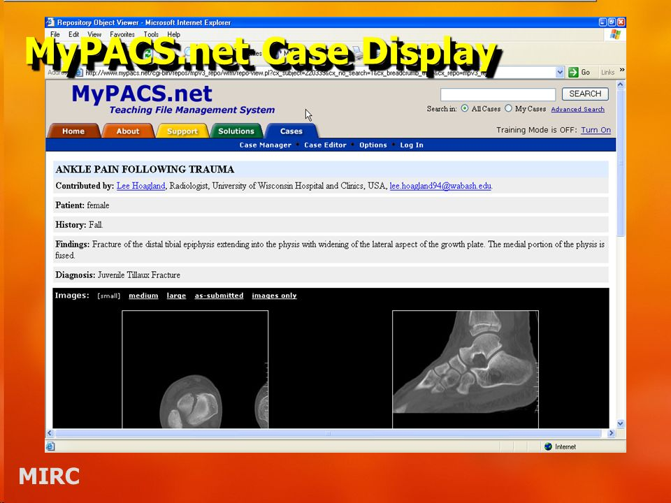 MIRC MyPACS.net Case Display