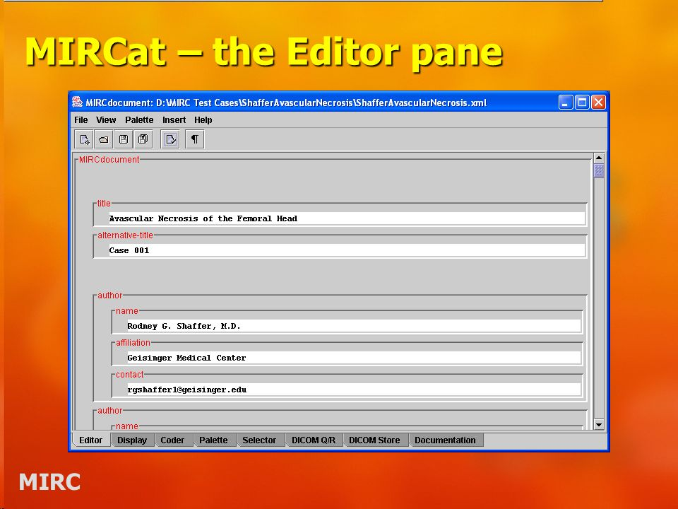 MIRC MIRCat – the Editor pane