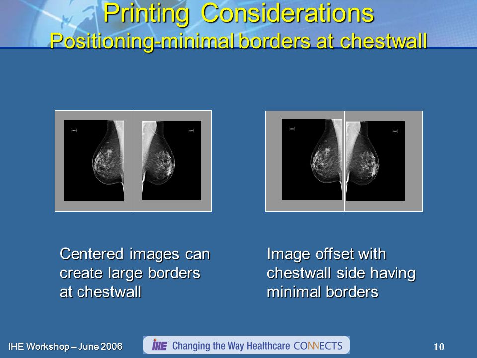IHE Workshop – June 2006 10 Printing Considerations Positioning-minimal borders at chestwall Centered images can create large borders at chestwall Image offset with chestwall side having minimal borders