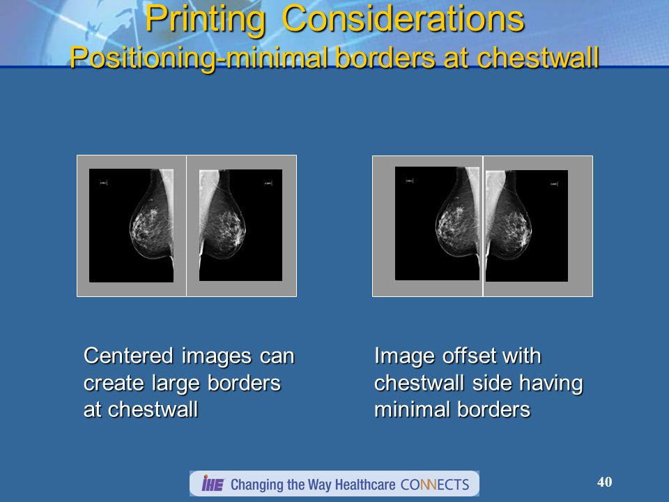 40 Printing Considerations Positioning-minimal borders at chestwall Centered images can create large borders at chestwall Image offset with chestwall side having minimal borders
