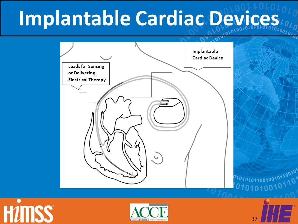 37 Implantable Cardiac Device Leads for Sensing or Delivering Electrical Therapy Implantable Cardiac Devices