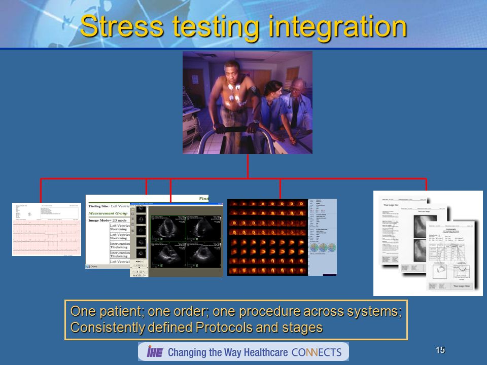 14 Stress Echo Integration Views defined; stages defined Consistent display of different vendor stress exams Toshiba Aplio (or Philips or GE) Goodman PACS (or 5 other vendors) views stages