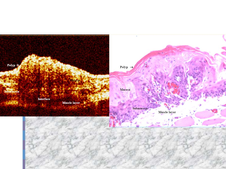 Polyp Mucosa Submucosa Muscle layer Polyp Mucosa Submucosa Interface Muscle layer