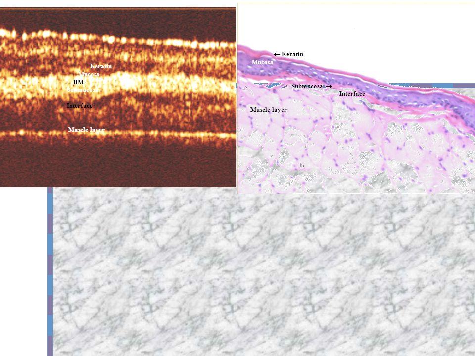 Keratin Mucosa BM Submucosa Interface Muscle layer Keratin Mucosa Submucosa Interface Muscle layer L