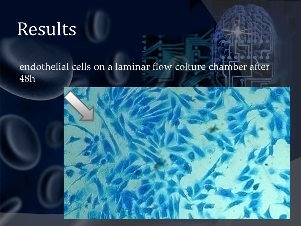 Results endothelial cells on a laminar flow colture chamber after 48h