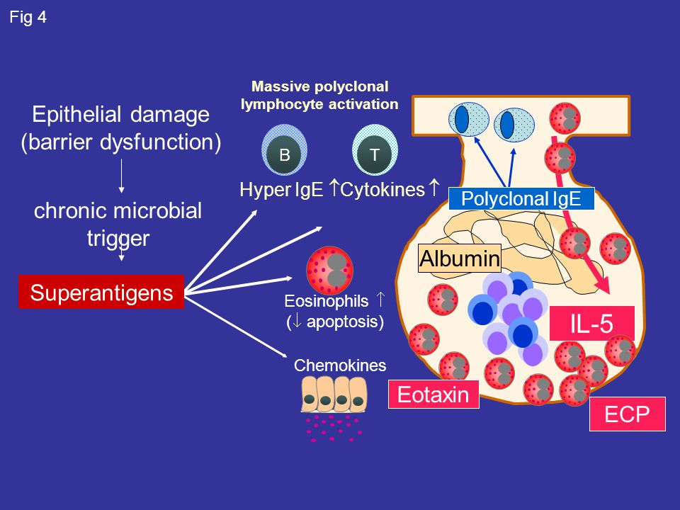 Chemokines Massive polyclonal lymphocyte activation TB Cytokines Hyper IgE Eosinophils ( apoptosis) Superantigens Epithelial damage (barrier dysfunction) IL-5 ECP Albumin Eotaxin Polyclonal IgE chronic microbial trigger Fig 4