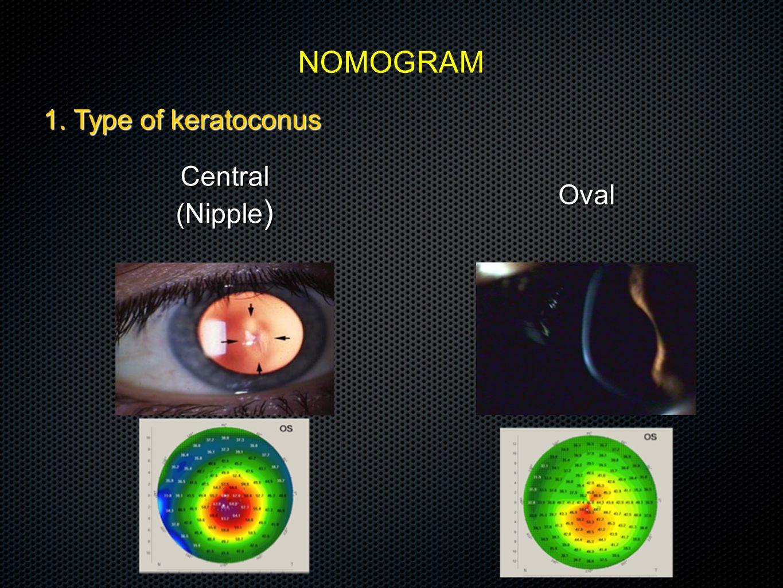 1. Type of keratoconus NOMOGRAM Central (Nipple ) Oval