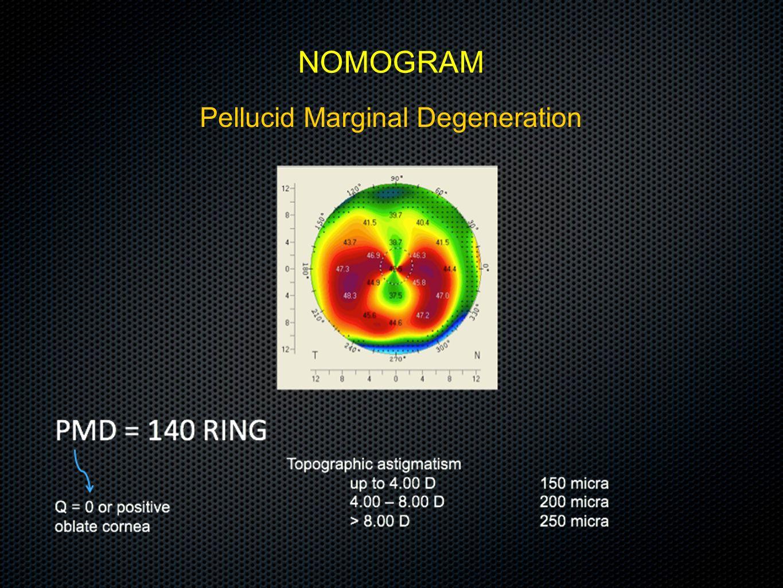 Pellucid Marginal Degeneration NOMOGRAM