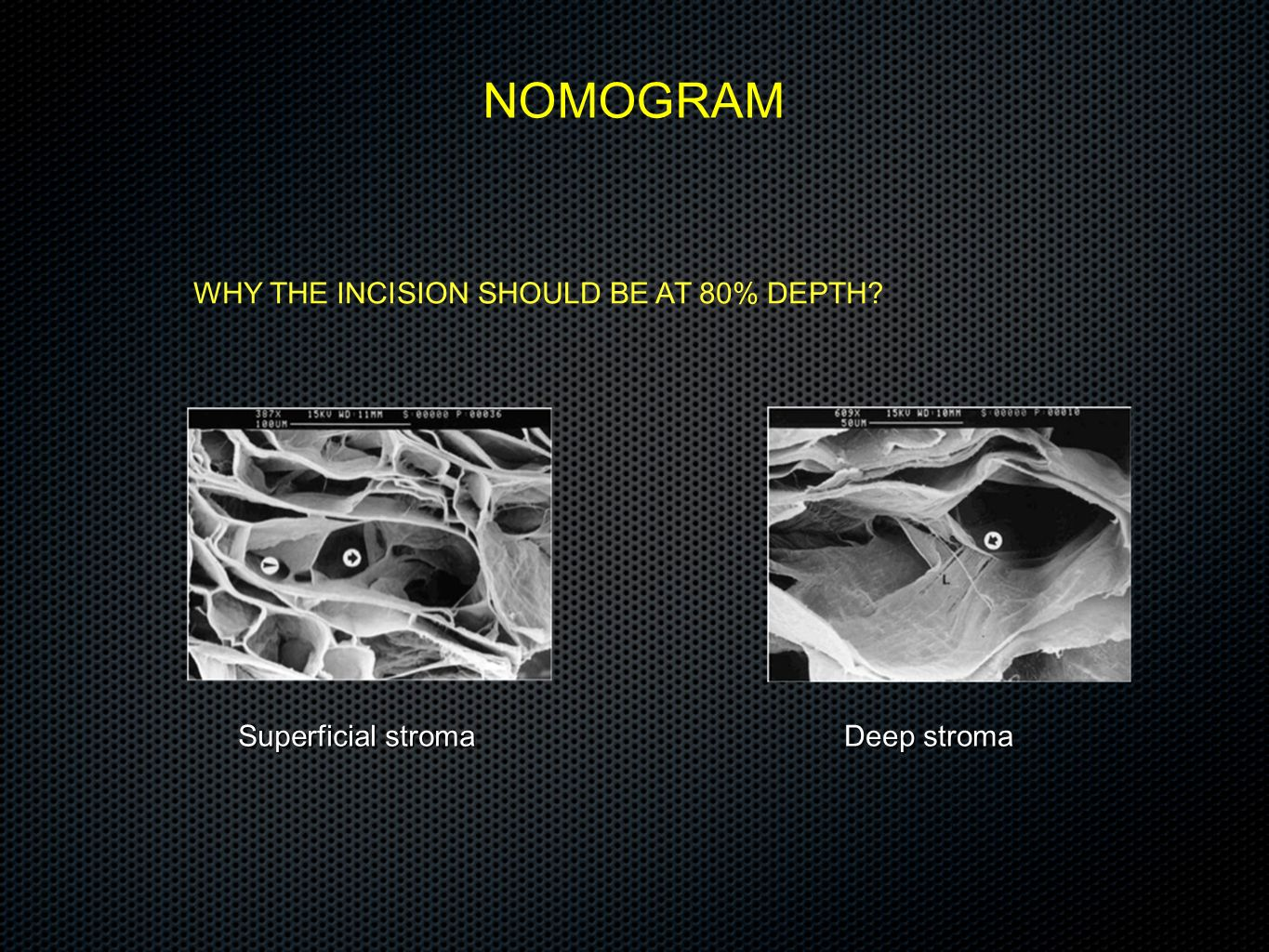 WHY THE INCISION SHOULD BE AT 80% DEPTH? NOMOGRAM Superficial stroma Deep stroma
