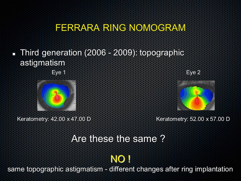 FERRARA RING NOMOGRAM Third generation (2006 - 2009): topographic astigmatism Eye 1 Eye 2 Keratometry: 42.00 x 47.00 D Are these the same ? NO ! same