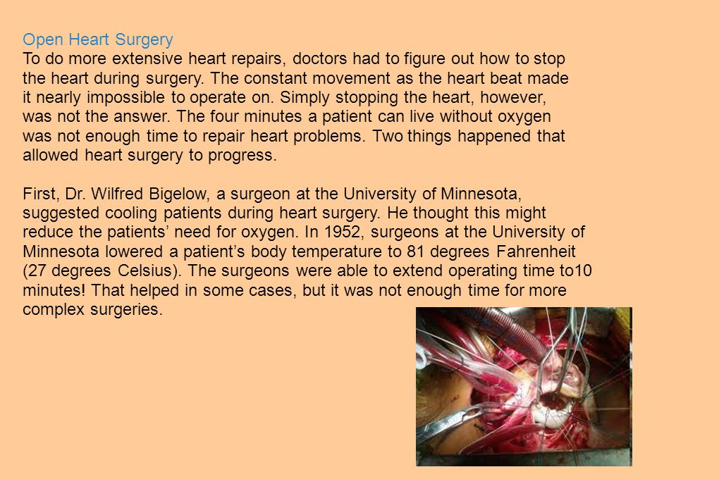 Open Heart Surgery To do more extensive heart repairs, doctors had to figure out how to stop the heart during surgery. The constant movement as the he