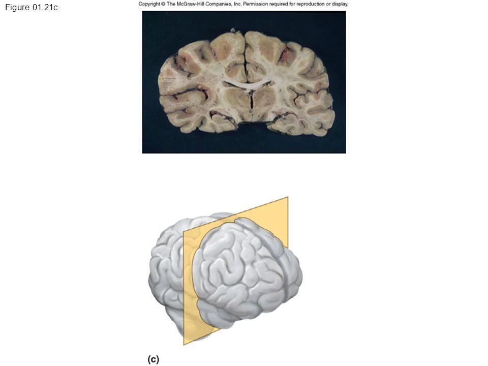 Figure 01.21c