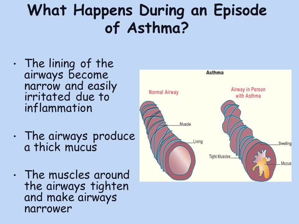 What Happens During an Episode of Asthma.