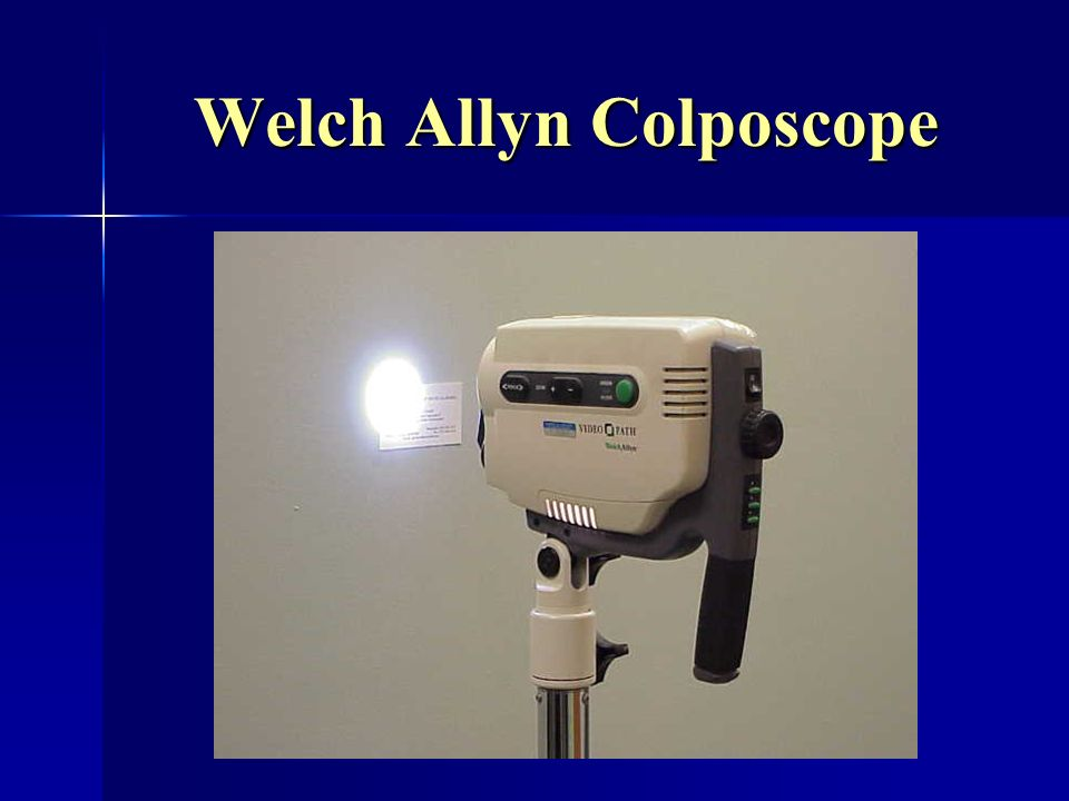 Welch Allyn Colposcope