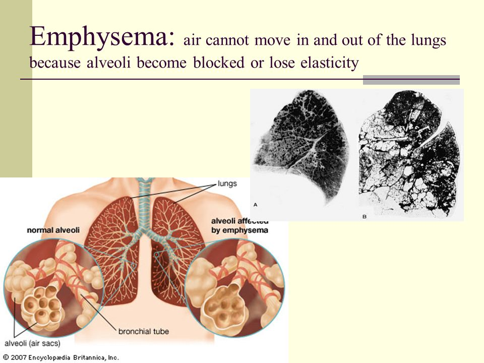 Emphysema: air cannot move in and out of the lungs because alveoli become blocked or lose elasticity