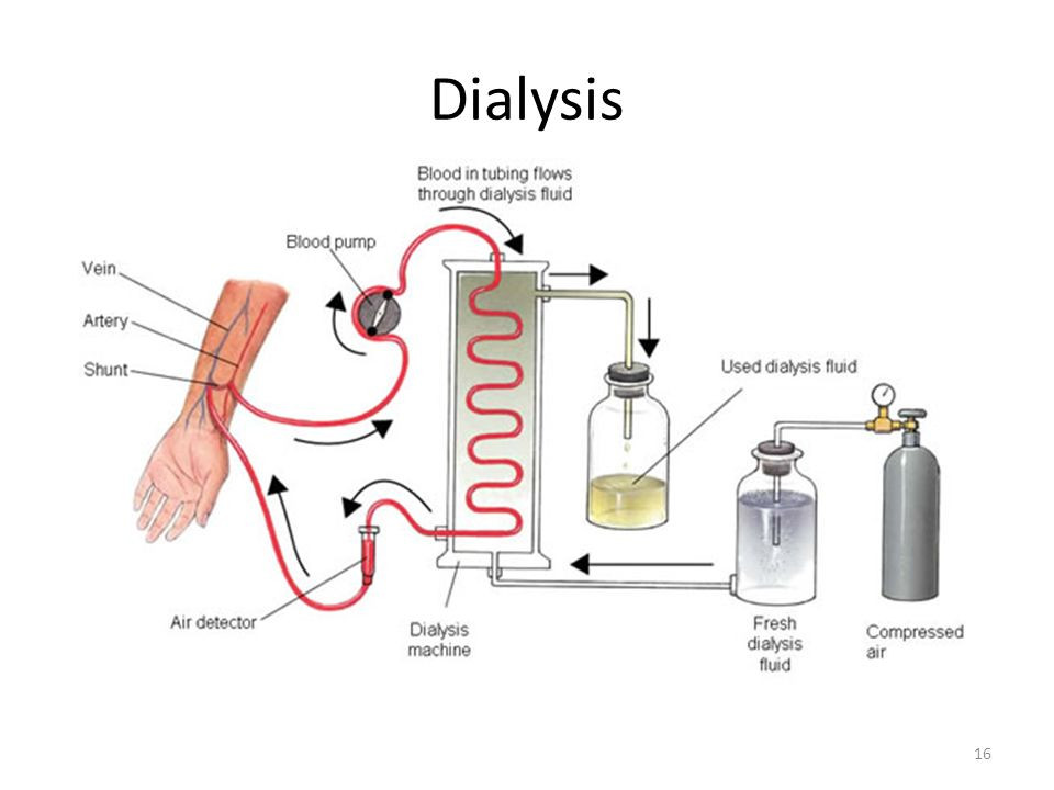 Dialysis 16