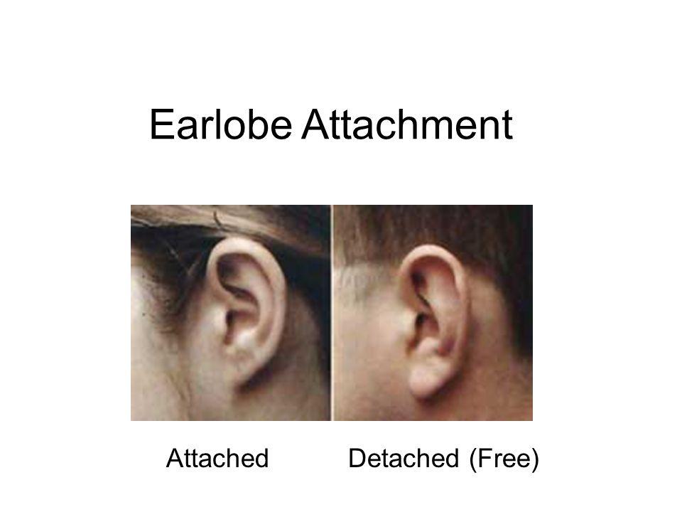 Earlobe Attachment AttachedDetached (Free)