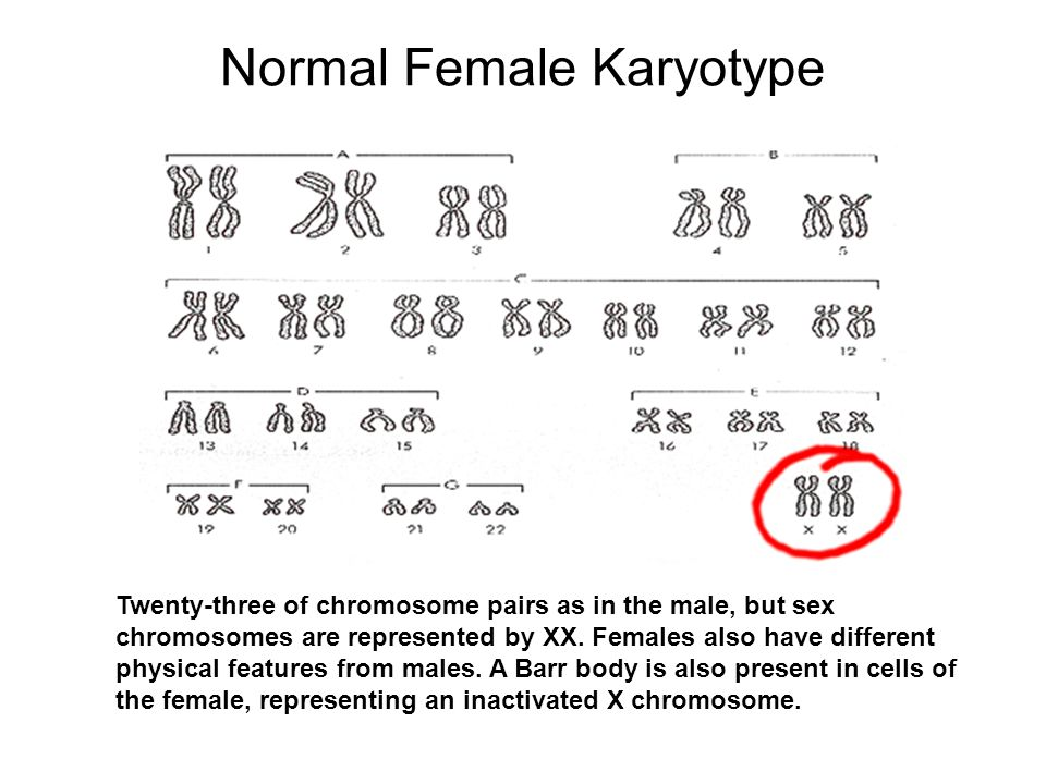 Normal Female Karyotype Twenty-three of chromosome pairs as in the male, but sex chromosomes are represented by XX. Females also have different physic