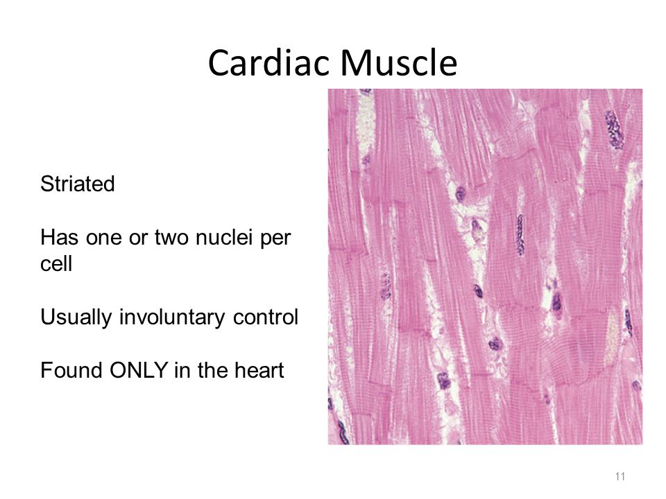 Cardiac Muscle 11 Striated Has one or two nuclei per cell Usually involuntary control Found ONLY in the heart