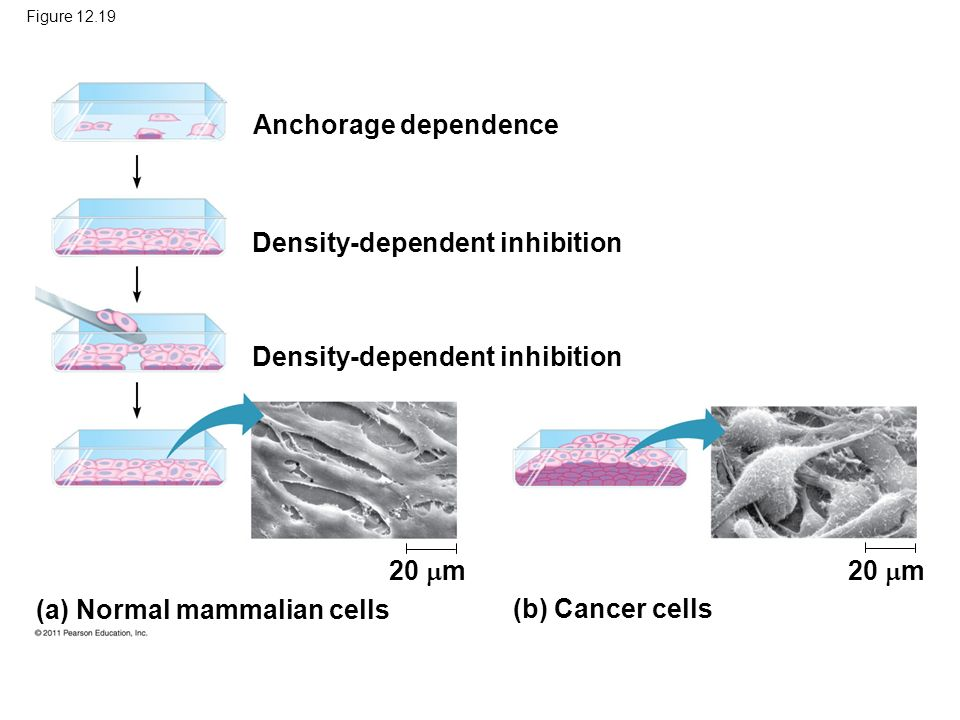 Figure 12.19 Anchorage dependence Density-dependent inhibition (a) Normal mammalian cells (b) Cancer cells 20 m