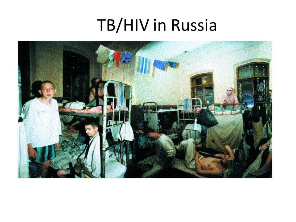 TB/HIV in Russia