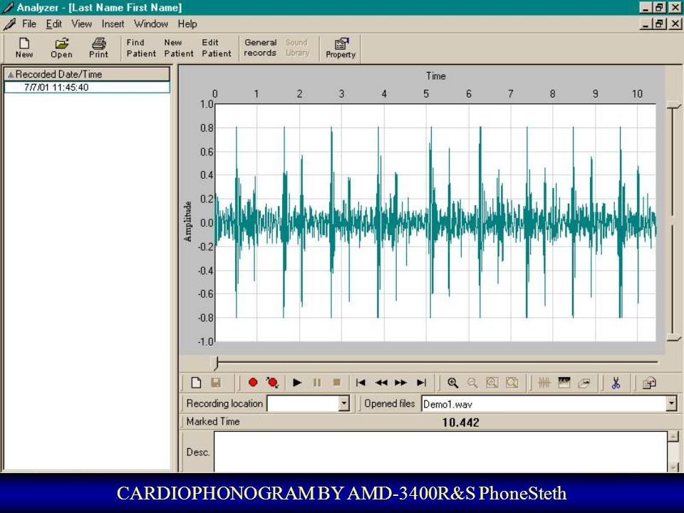 CARDIOPHONOGRAM BY AMD-3400R&S PhoneSteth