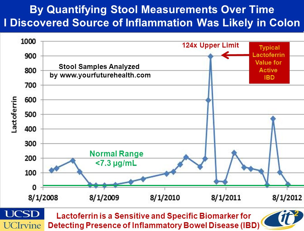By Quantifying Stool Measurements Over Time I Discovered Source of Inflammation Was Likely in Colon Normal Range <7.3 µg/mL 124x Upper Limit Typical Lactoferrin Value for Active IBD Lactoferrin is a Sensitive and Specific Biomarker for Detecting Presence of Inflammatory Bowel Disease (IBD) Stool Samples Analyzed by