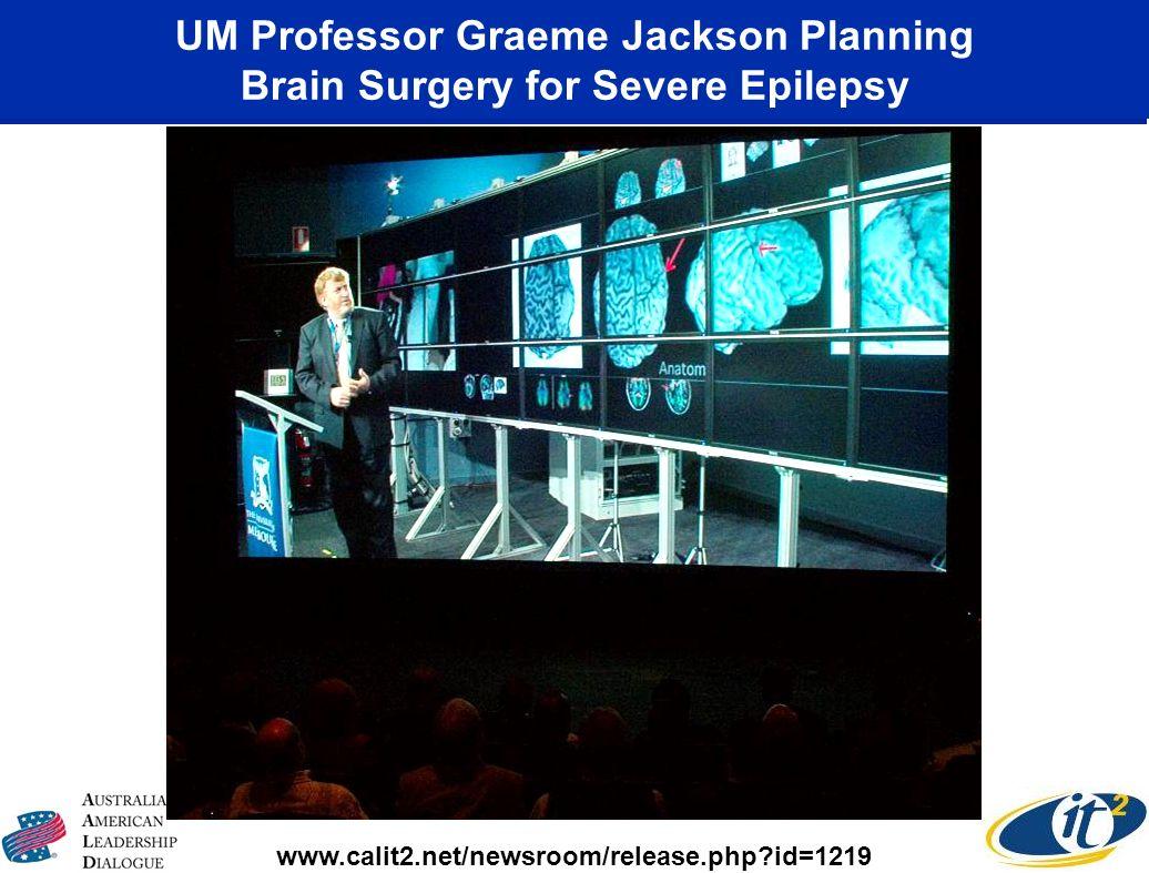 UM Professor Graeme Jackson Planning Brain Surgery for Severe Epilepsy www.calit2.net/newsroom/release.php?id=1219