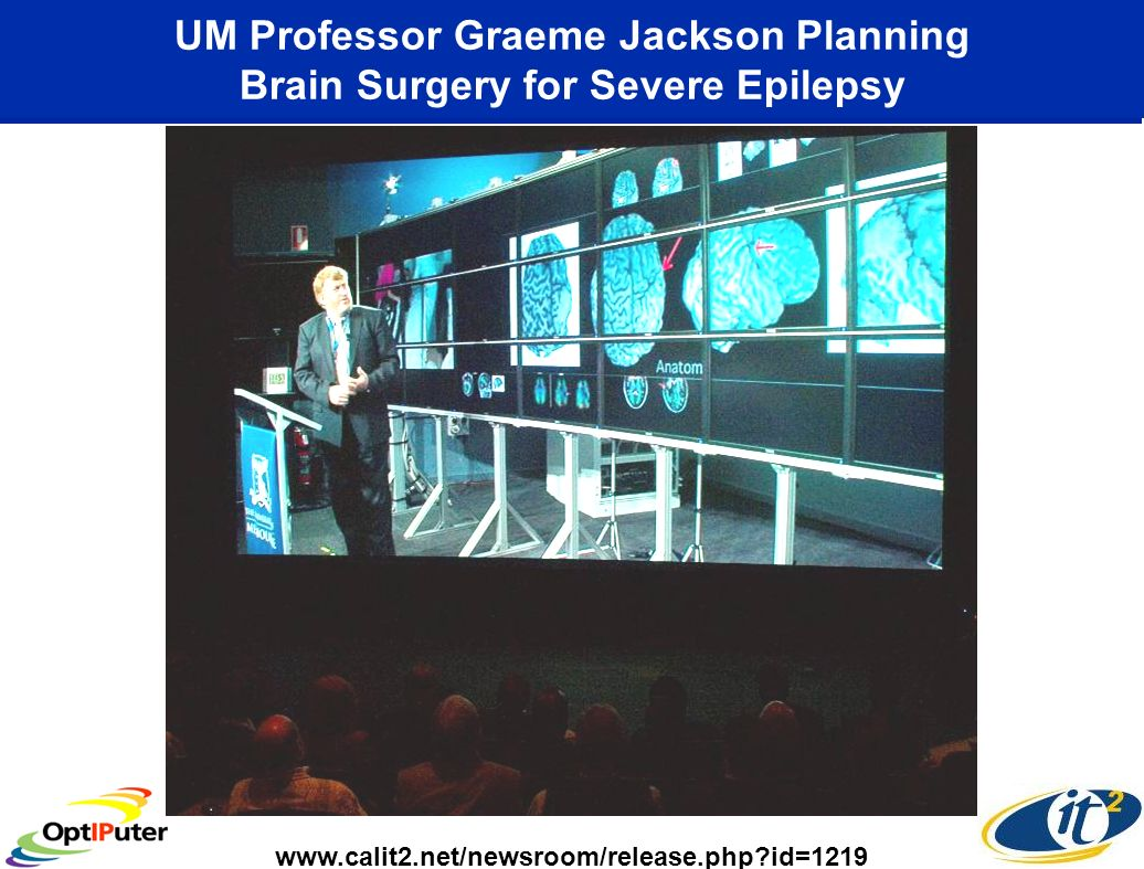 UM Professor Graeme Jackson Planning Brain Surgery for Severe Epilepsy www.calit2.net/newsroom/release.php id=1219