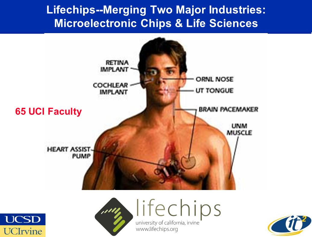 LifeChips: the merging of two major industries, the microelectronic chip industry with the life science industry LifeChips medical devices Lifechips--Merging Two Major Industries: Microelectronic Chips & Life Sciences 65 UCI Faculty