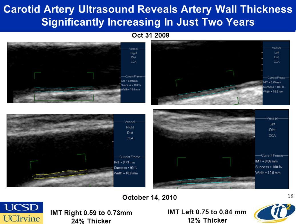 Carotid Artery Ultrasound Reveals Artery Wall Thickness Significantly Increasing In Just Two Years 18 October 14, 2010 Oct 31 2008 IMT Right 0.59 to 0