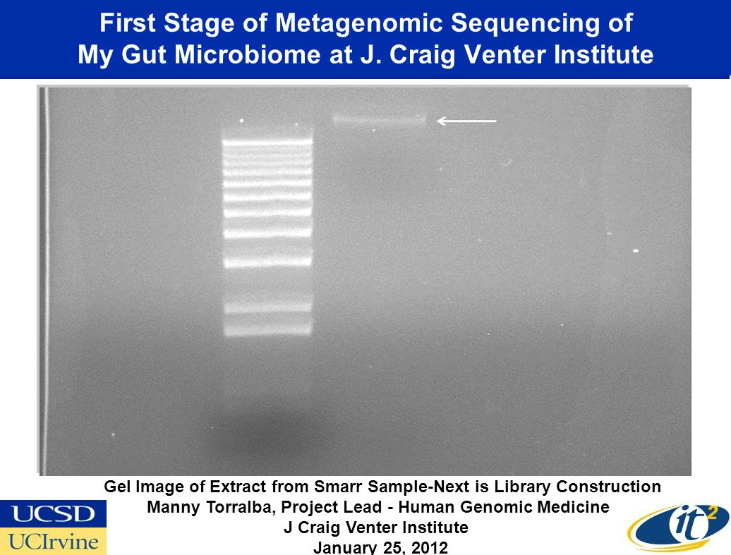 First Stage of Metagenomic Sequencing of My Gut Microbiome at J. Craig Venter Institute Gel Image of Extract from Smarr Sample-Next is Library Constru