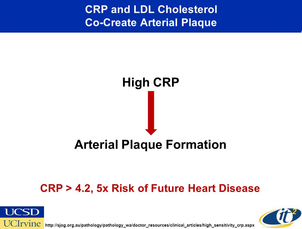 High CRP Arterial Plaque Formation CRP > 4.2, 5x Risk of Future Heart Disease http://sjog.org.au/pathology/pathology_wa/doctor_resources/clinical_articles/high_sensitivity_crp.aspx CRP and LDL Cholesterol Co-Create Arterial Plaque