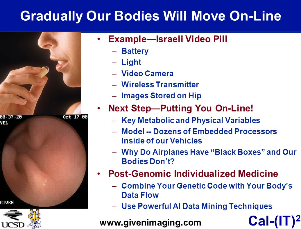Cal-(IT) 2 Gradually Our Bodies Will Move On-Line ExampleIsraeli Video Pill –Battery –Light –Video Camera –Wireless Transmitter –Images Stored on Hip