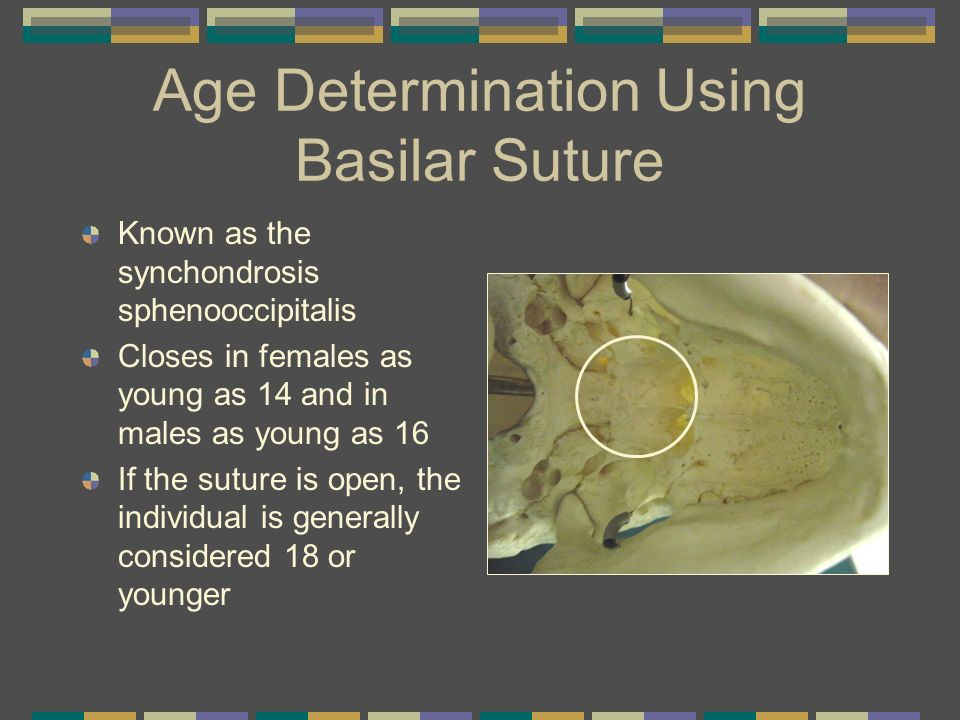 Age Determination Using Basilar Suture Known as the synchondrosis sphenooccipitalis Closes in females as young as 14 and in males as young as 16 If th